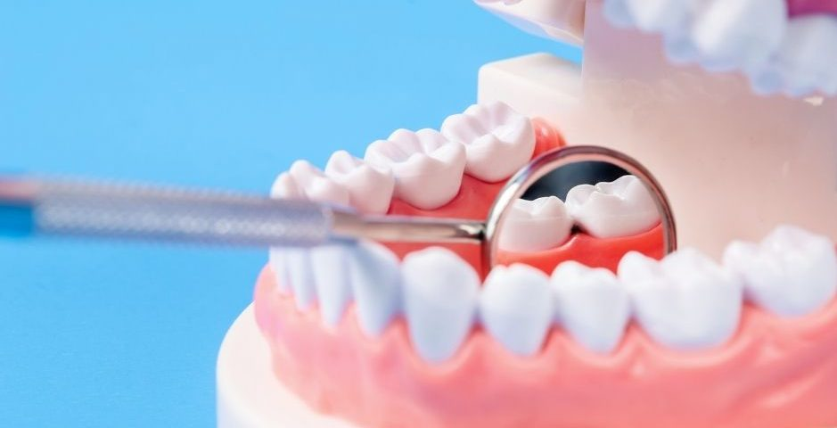caries dental dentales dentistas linares De Torres y Polaina odontologos